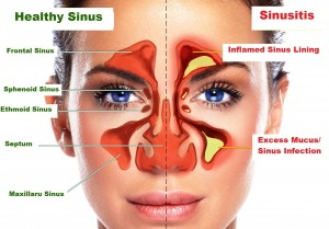 obat sinusitis alami